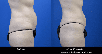 SCULPSURE BEFORE AND AFTER IMAGE
