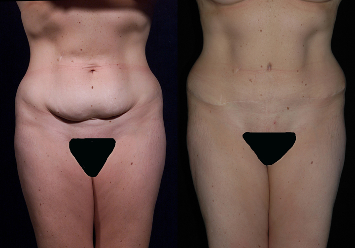 abdominoplasty after and before image
