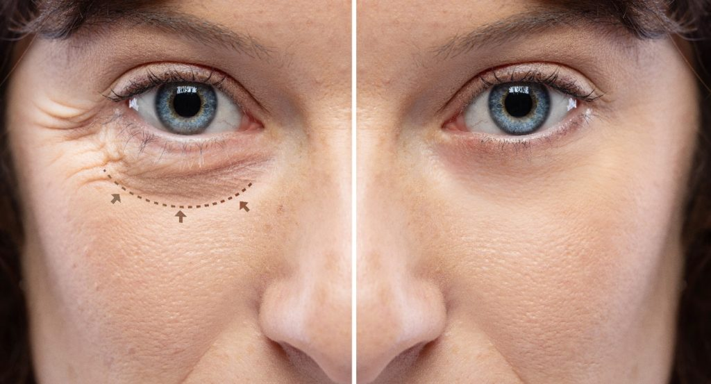 wrinkles and crow's feet removal Lines and arrows shows blepharoplasty zone