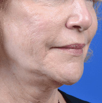 Cosmetic Skin Procedures