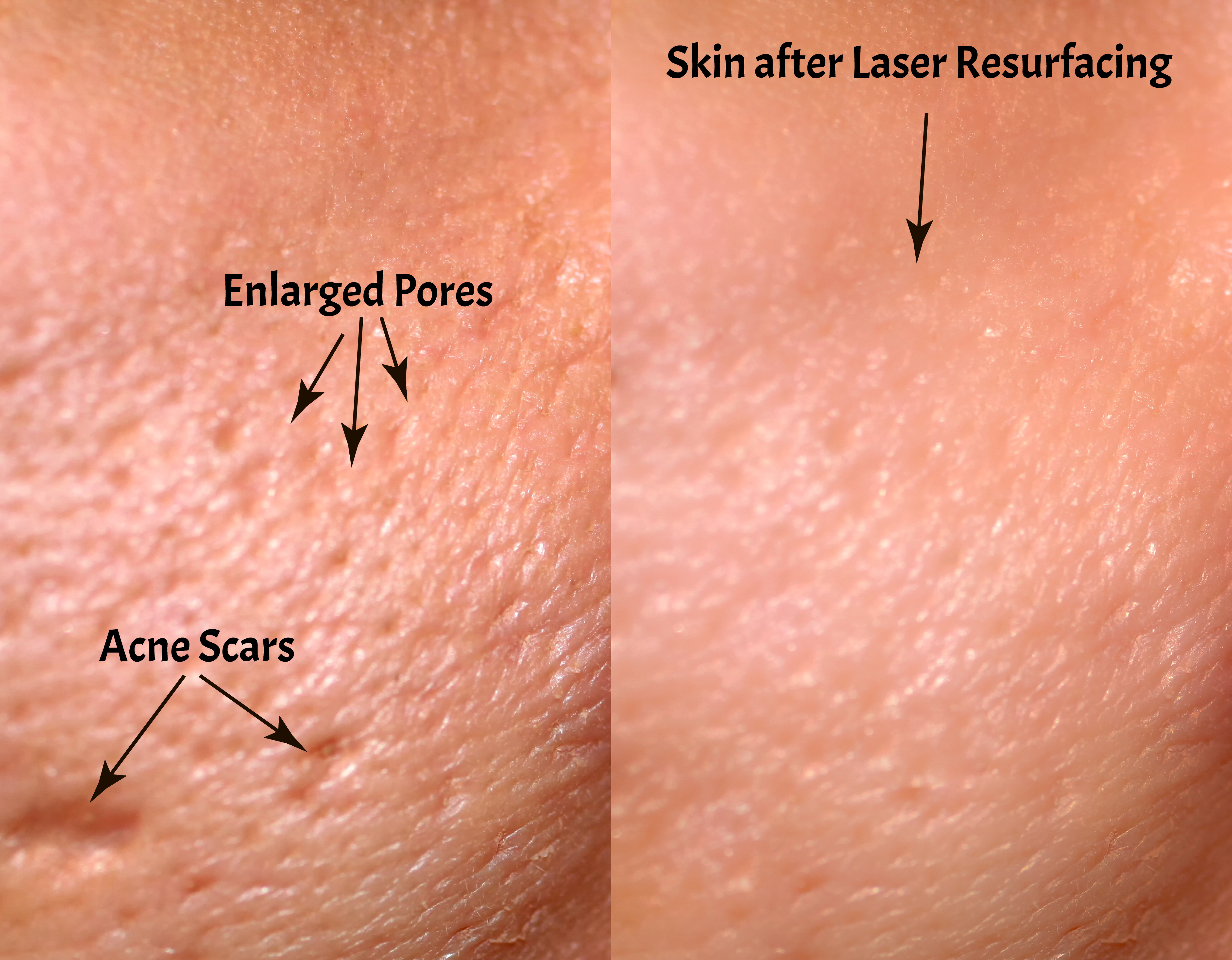 Comparison of skin before and after laser resurfacing