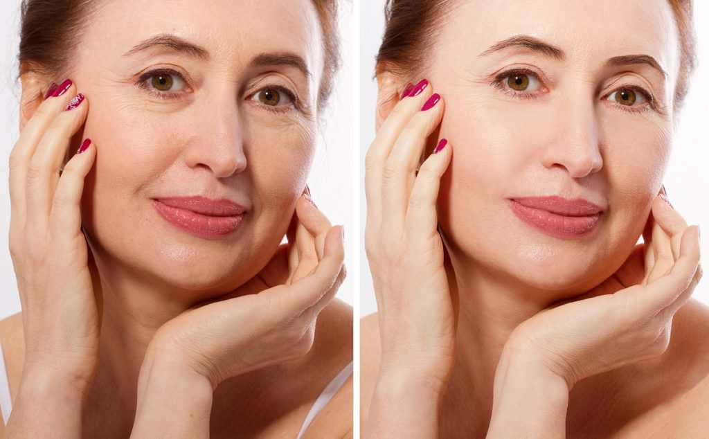 Middle age woman happy face before after cosmetic procedures