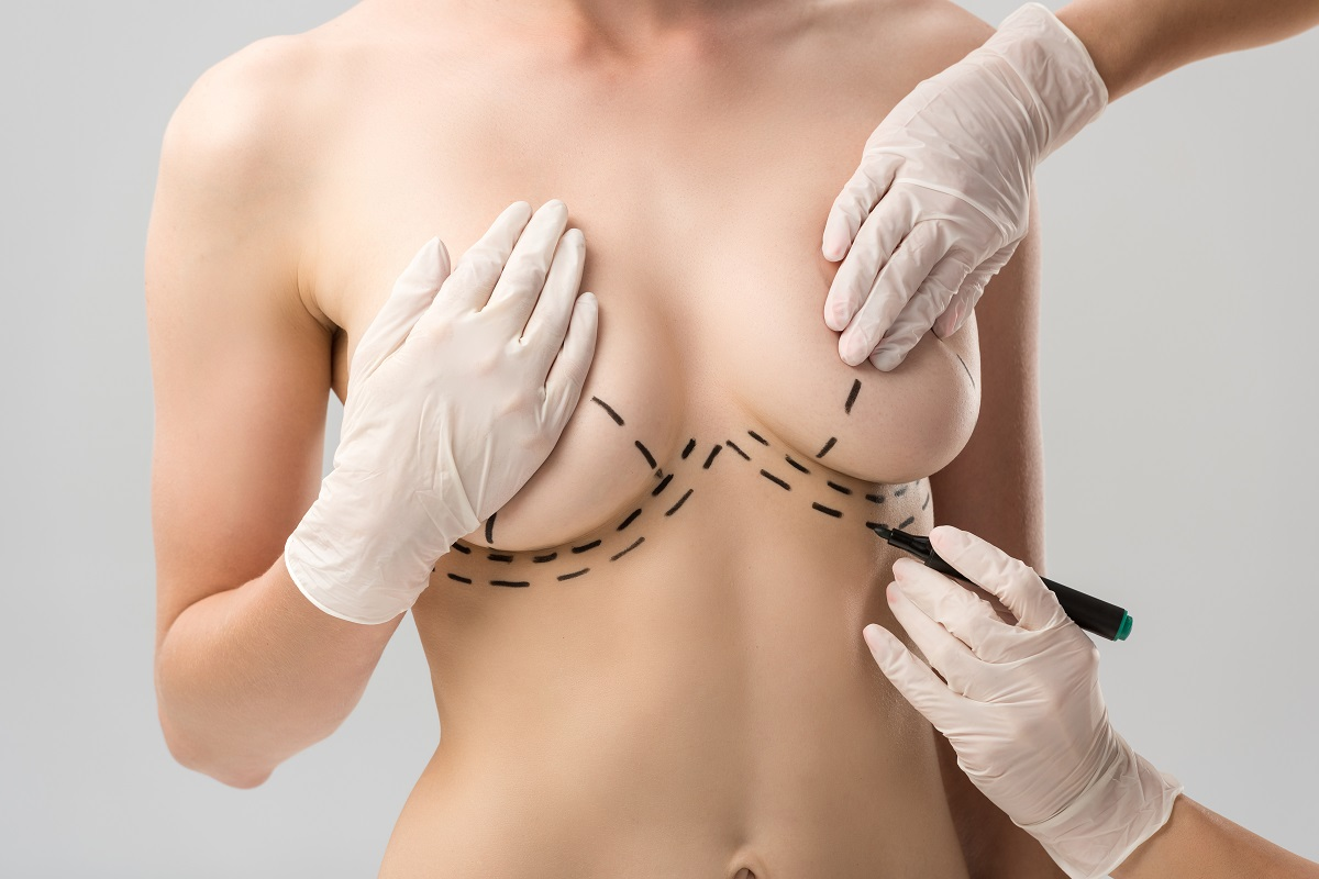 plastic surgeon in latex gloves making marks on breast