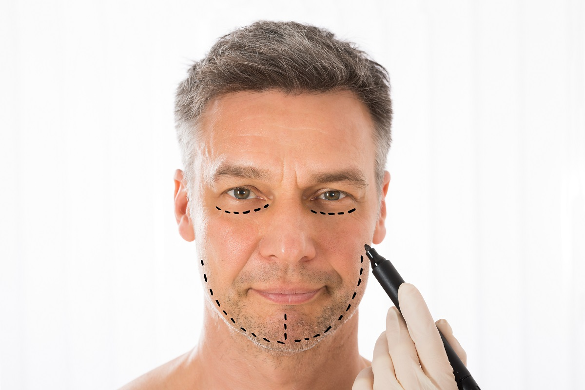 Surgeon Hands Drawing Correction Lines On Man Face With Marker