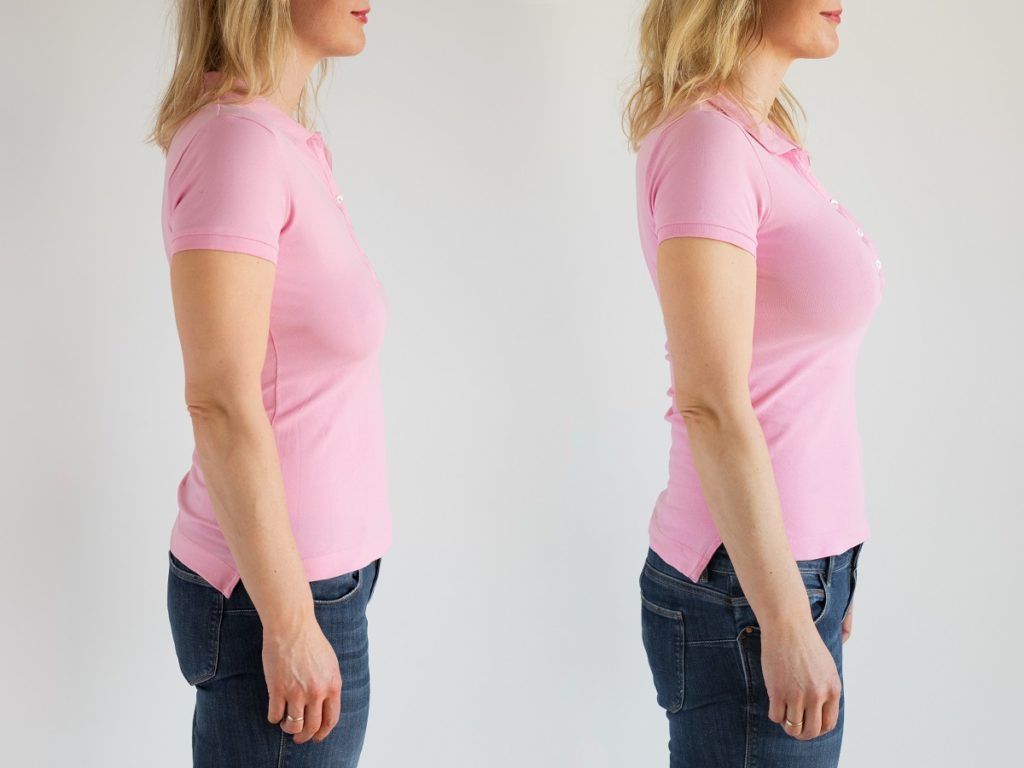 woman before and after breast lift enhancement and augmentation with implants surgery