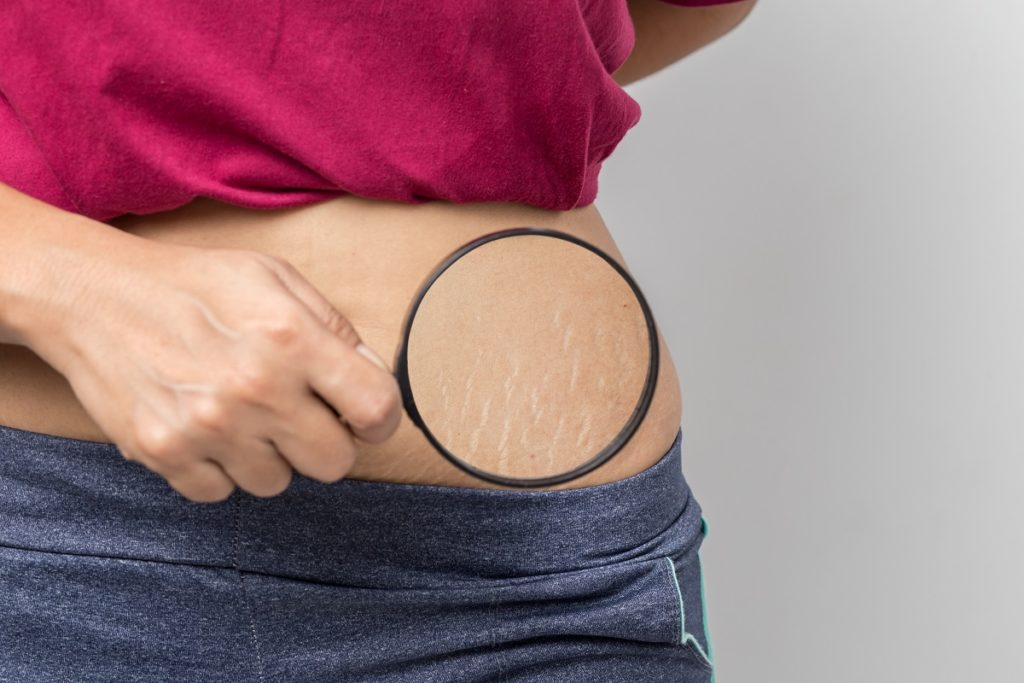 Women Show off the belly's Stretch Marks on white background