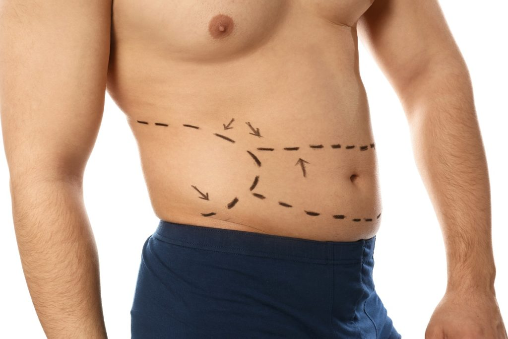 Young man with marks on belly for cosmetic surgery operation